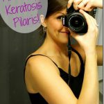 how I fixed my keratosis pilaris