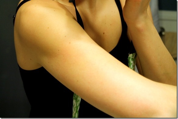 how to fix keratosis pilaris