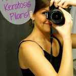 How I Fixed My Keratosis Pilaris